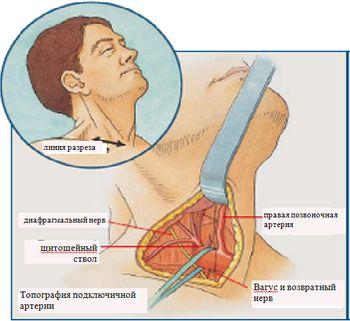 Хирургический доступ и топографическая анатомия подключично-позвоночного сегмента