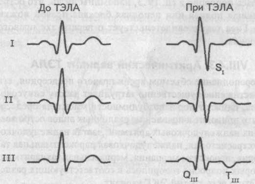 Электрокардиографический синдром SI-QIII-TIII