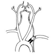 Синдром позвоночно-подключичного обкрадывания