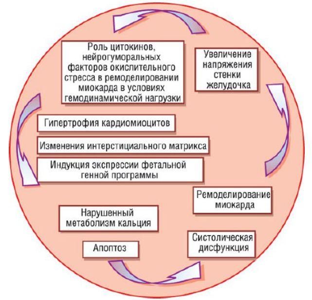 Порочный круг развития систолической дисфункции