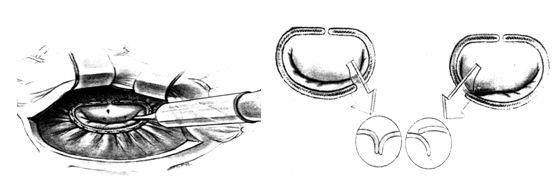 Проведение гидравлической пробы герметичности клапана