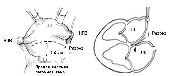 Доступ к митральному клапану через левое предсердие