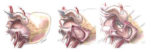 Доступ к митральному клапану через правое, крышу левого предсердия и межпредсердную перегородку