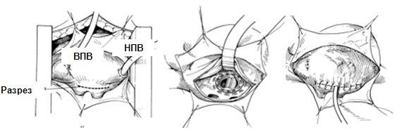 Доступ к митральному клапану при миниинвазивной операции
