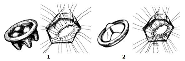 Техника наложения фиксирующих швов