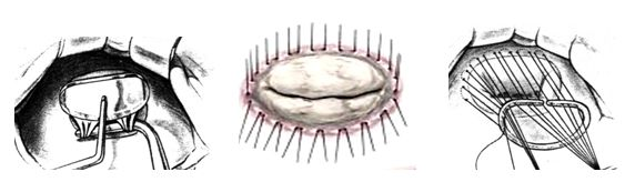 Техника аннулопластики на жестком кольце