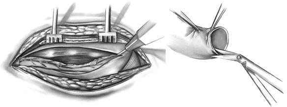 Выделение и подготовка для дистального анастомоза внутренней грудной артерии
