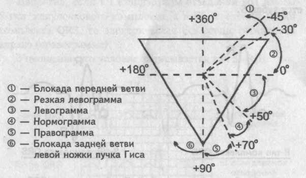 Электрическая схема оси
