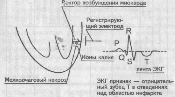 Интрамуральный инфаркт миокарда