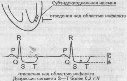 Острейшая стадия инфаркта миокарда