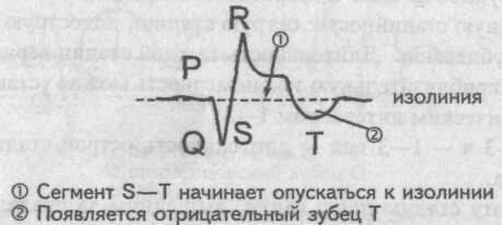 Подострая стадия инфаркта миокарда