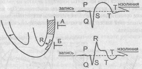 Крупноочаговые инфаркты миокарда