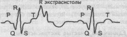 Экстрасистола R-на-Т