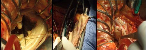 Использование ксеноперикарда при пластике задней створки митрального клапана