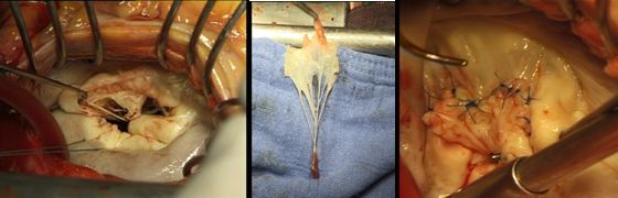 Использование задней створки трехстворчатого клапана при замещении дефекта передней створки митрального клапана