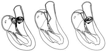 Восстановление корня аорты при абсцессе аортального кольца