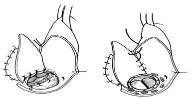 Имплантация аортального протеза и восстановление восходящей аорты