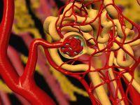 Вазоренальная артериальная гипертензия - Кардиолог - сайт о ...