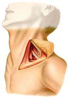 Хирургическое лечение атеросклеротического поражения подключичной артерии