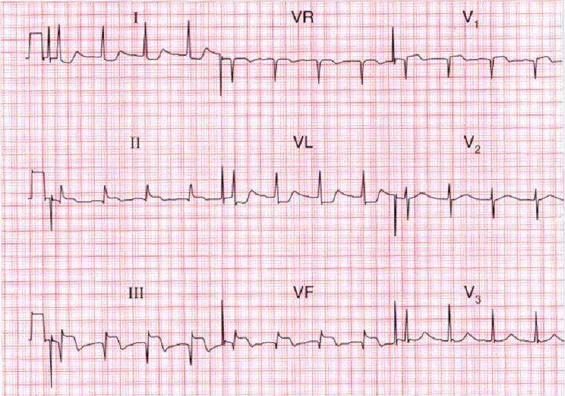 ЭКГ при нижнем инфаркте миокарда с поражением правого желудочка