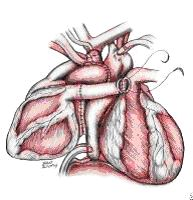 Гетеротопия сердца