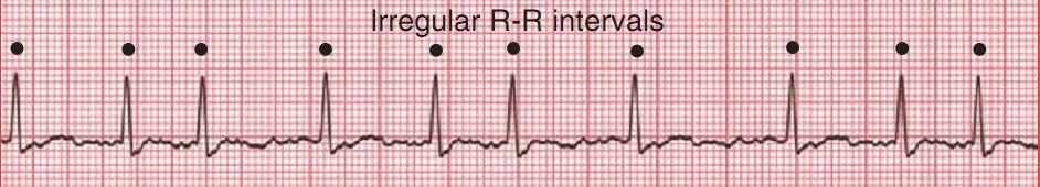 Мерцательная аритмия - Кардиолог - сайт о заболеваниях сердца и ...