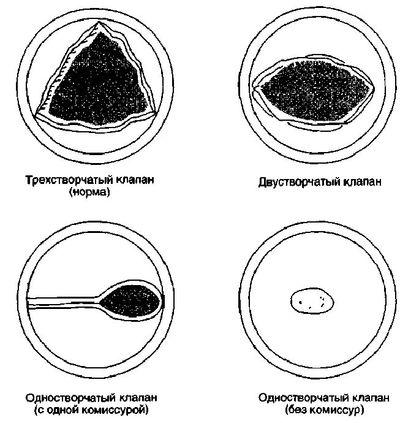 аортального клапана при