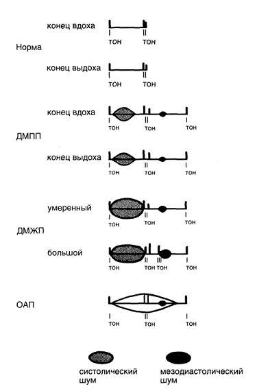 Аускультация при открытом артериальном протоке