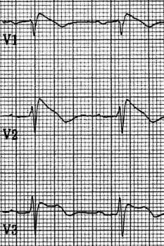 Аримогенная дисплазия правого желудочка