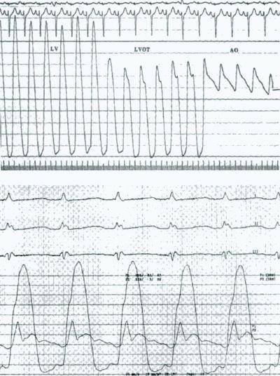 Кривые давления в камерах сердца при гипертрофической кардиомиопатии