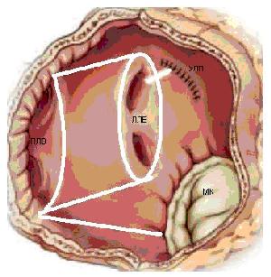 Лечение мерцательной аритмии сердца таблетками