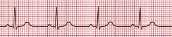 ekg chapter 49 I have been in nursing for 35 years and have worked in a variety of settings including hospice, long term care, med-surg, supervision, cath lab, er, special procedures and critical care.