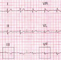 Инфаркт миокарда без подъема сегмента ST