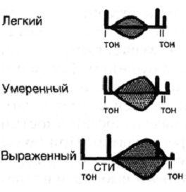 Аускультативная картина при стенозе клапана легочной артерии