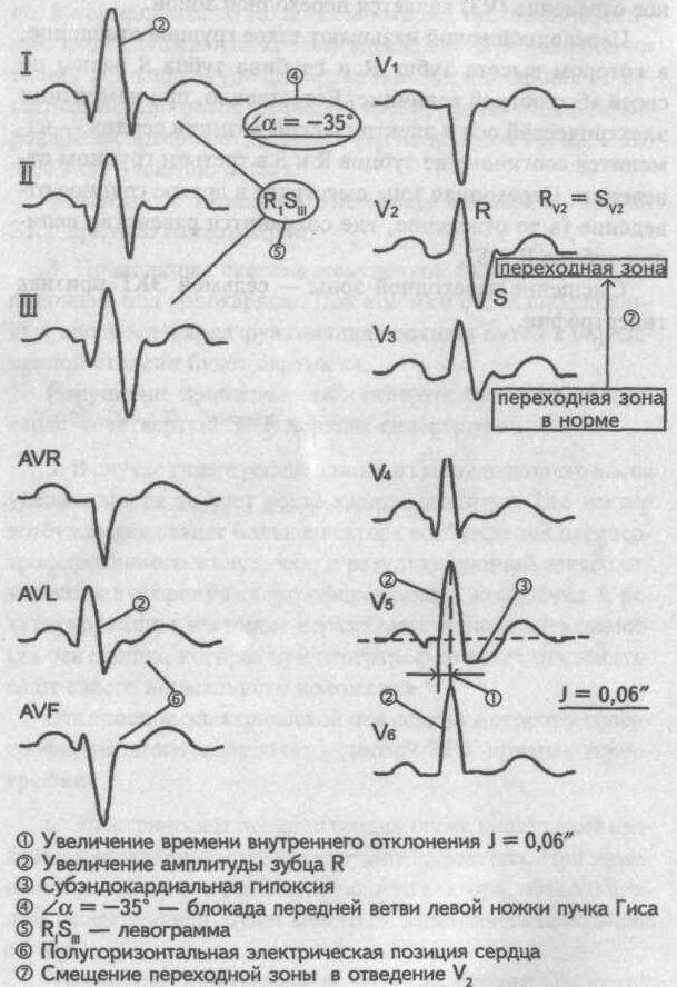 гипертрофия желудочков сердца на экг